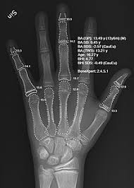 Bone Age Growth Chart Bone Age Wikipedia