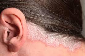 Билки лекуват псориазис, себорея,... - Златна билка- срещу псориазис,  себореен дерматит, екземи | فيسبوك