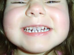 Image result for baby tooth trauma