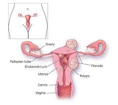 heavy menstrual bleeding cdc