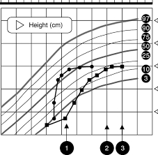 Bone Age Growth Chart Growth Chart Representing The Height Squares And Height