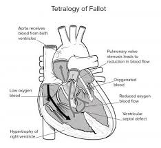 Pathophysiology Of Ventricular Septal Defect In Flow Chart Tetralogy Of Fallot Tof In Adults Practice Essentials