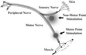 Motor Points For Electrical Stimulation Chart Neuromuscular Electrical Stimulation In Critically Ill