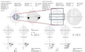 Visual Field Chart Interpretation 10 2 Visual Field Testing A Tool For All Glaucoma Stages
