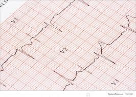 Health A Closeup Of An Ekg Chart