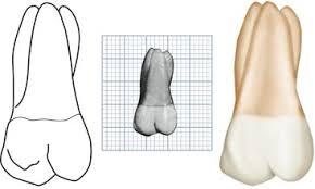 Maxillary Second Molar 11 The Permanent Maxillary Molars Pocket Dentistry