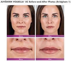 juvederm non surgical fillers bella