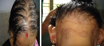 the photo on the left is suggestive of a type of hair loss known as diffuse thinning or evenly ed thinning throughout the scalp