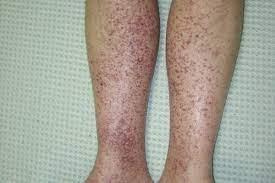 アナフィラ クト イド 紫斑 病 と は