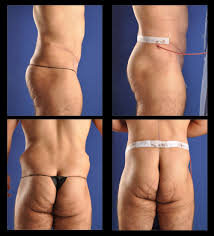 Post Weight Loss Surgery / Post Bariatric Surgery - Chugay Cosmetic ...