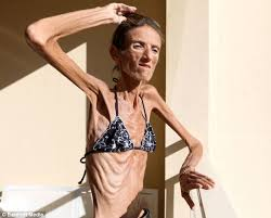 real anorexic people. Wonderful Anorexic She Says She Wants To Share Her Story Prevent Other People Falling  Victim The With Real Anorexic People O
