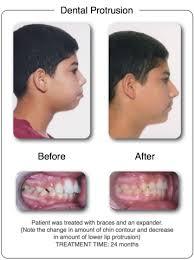 schacter orthodontics woodland hills ca