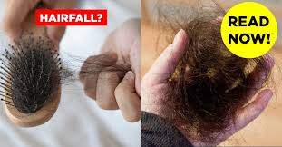 how to stop hair fall 20 tips