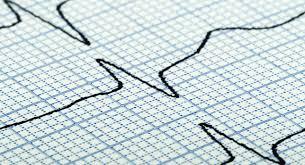 disease essay heart disease essay