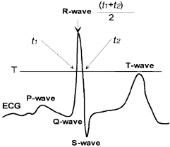 Illustration of R-wave detection algorithm. <b>t1</b> and t2 are the time ...