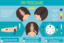 new prp acell hair regrowth therapy is an exciting new treatment for hair loss