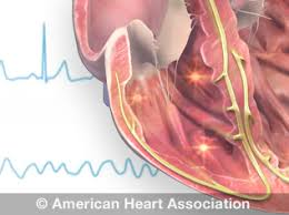 Types Of Arrhythmia Chart Tachycardia Fast Heart Rate American Heart Association