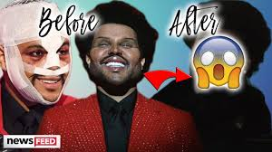 The Weeknd's Plastic Surgery Look VANISHES! - YouTube