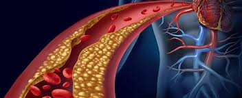 Lipid Profile Normal Values Chart India Hdl Cholesterol Understand The Test Your Results