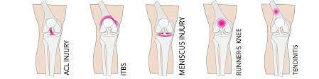 yoga for knee pain rachel scott