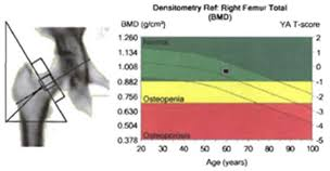 Bone Density Scan Results Chart Can A Dxa Scan Determine My Risk For Osteoporosis Wake