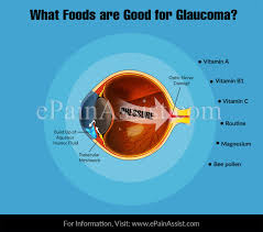 Glaucoma Bright Lights What Foods Are Good For Glaucoma