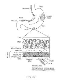 2003 ezgo wire diagram auto electrical wiring diagram 2003 ezgo wire diagram