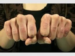 Toužíte Po Tetování Bílé Tetování Vám Udělá Z Těla Krajku Modacz