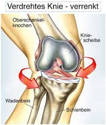 Zuerst erfragt der kniespezialist die krankengeschichte (anamnese). Knieschmerzen Symptomecheck Was Bedeutet Schmerz Vorne Hinten Seitlich Beim Treppensteigen Www Gelenk Doktor De