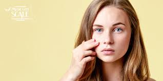 why female acne is treated diffe
