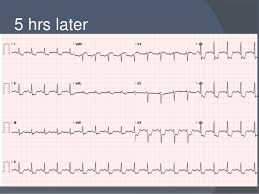 Non St Elevation Myocardial Infarction And Unstable Angina