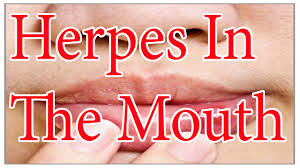 oral herpes cure