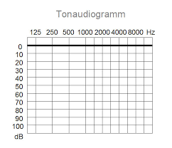 How To Read Your Audiogram At Your Hearing Test