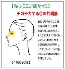 目 が チカチカ する 頭痛