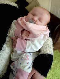 Baby Daisy Smith born with no eyes will have some painted on | Metro News
