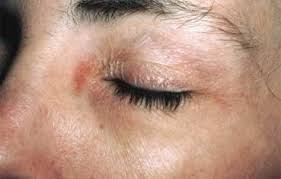 Contact dermatitis | American Academy of Dermatology