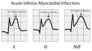 St Segment Elevation Myocardial Infarction Stemi Ecg Cardiac