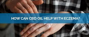How Can CBD Oil Help With Eczema? - HempMeds