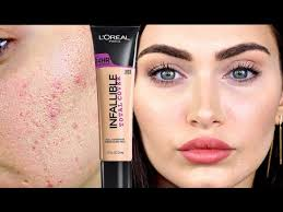 how to cover acne and colour correct acne scars collab ruby golani