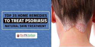 treat psoriasis it can occur on any part of the body however the most monly affected areas are the knees scalp elbows knuckles lower back and