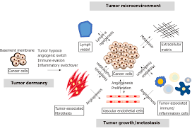 Tumor Progression Dependent Angiogenesis In Gastric Cancer