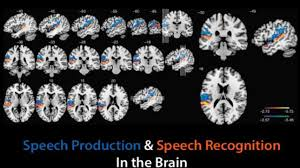 Mapping language in the brain | Technology Networks