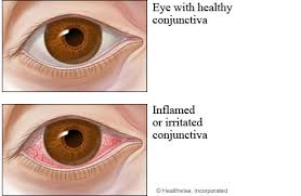 healthy conjunctiva pared to conjunctivitis pink eye