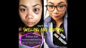 how to cover swelling bruising i color correcting i my surgery i mommashaishy
