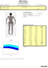 Bone Density Scan Results Chart Dexa Scan Review Results Me Vs The Bulge A Weight