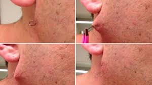 how to get rid of an ingrown hair cyst