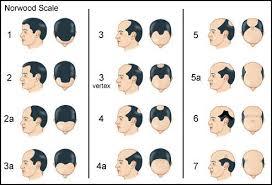 Norwood Scale Baldness Chart Hair Loss Medication Hair