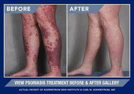 Psoriasis Soderstrom Skin Institute