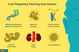 Hearing Impairment Definition And Causes Of Low Frequency Hearing Loss