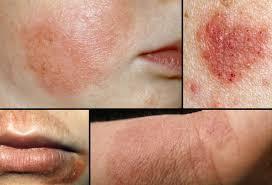 Eczema Pictures: What Atopic Dermatitis Looks Like, Cradle Cap, How ...